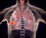 Lung cancer screening using Google AI proves to be successful