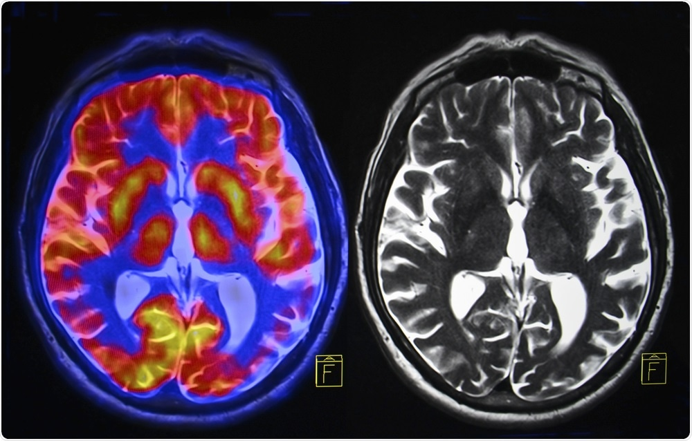 Physicians have defined a new form of dementia that may be more common than Alzheimer's disease.
