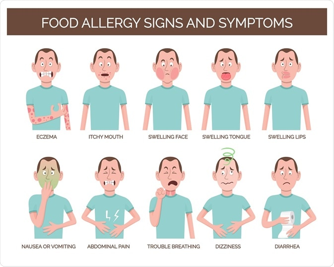 Common symptoms of food allergies.