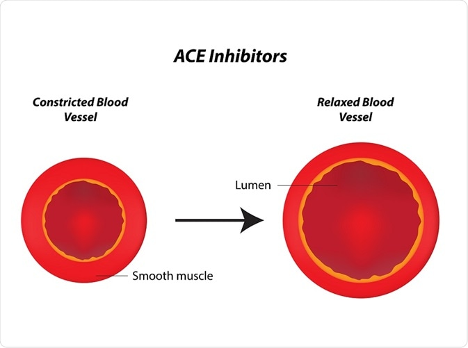 Angiotensin-converting enzyme (ACE) inhibitors are drugs used to treat high blood pressure and congestive heart failure.
