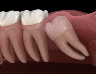 Study shows positive long-term effects of wisdom teeth extraction on taste function