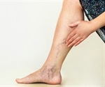 New study finds height as possible risk factor for developing varicose veins