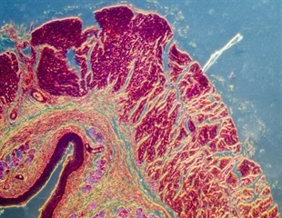 Newly-identified nutrient helps the gut recall prior infections and kill invading bacteria