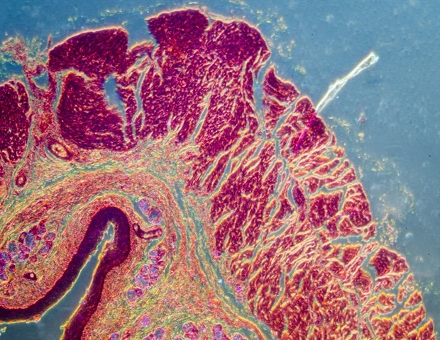 Hair follicle stem cells play an outsize role in healing skin blisters – News-Medical.net