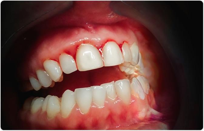 Mouth with bleeding gums. Image Credit: Algirdas Gelazius / Shutterstock