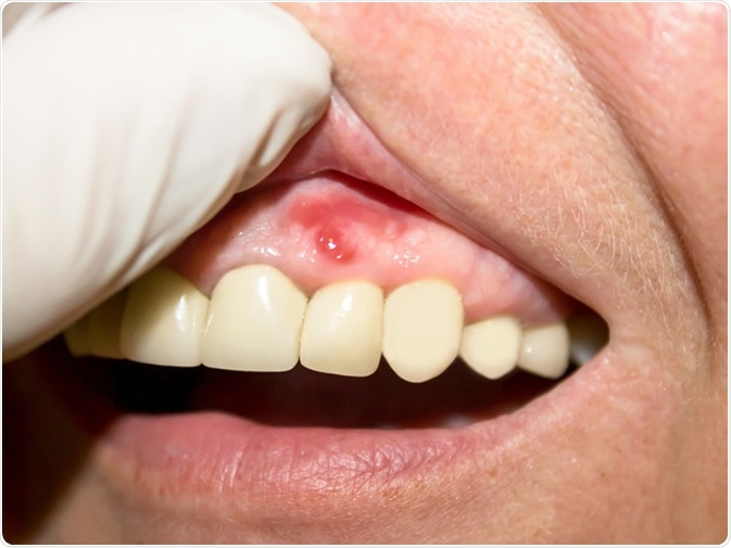 Periodontitis. Inflammatory process in the gum area. Image Credit: Svetlana8Art / Shutterstock