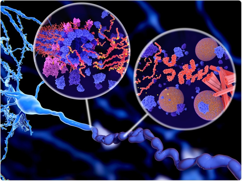Prions have now been linked to tau tangles and amyloid plaques seen in alzheimer