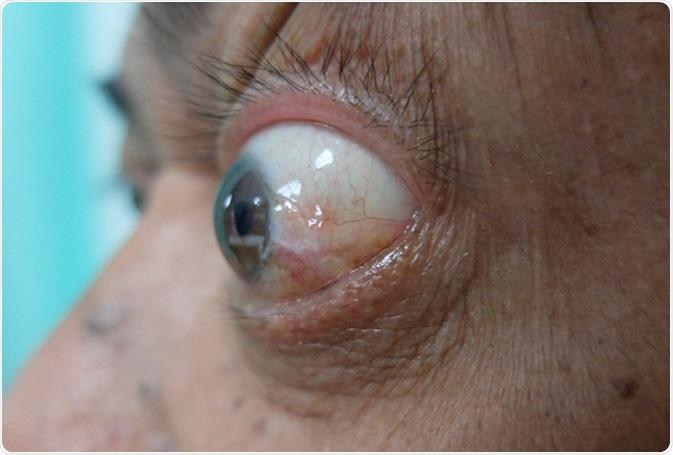 Exopthalmos ou prorotosis descrito como a saliência do globo ocular. Crédito de imagem: Casas Nayafana/Shutterstock