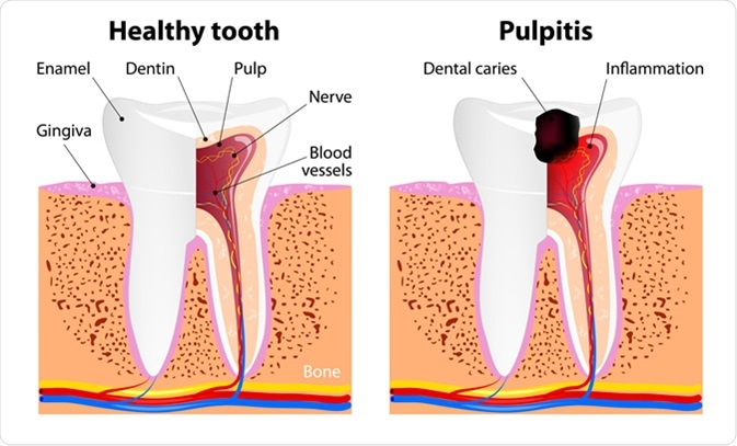 Pulpitis and Healthy tooth. Image Credit: Designua / Shutterstock