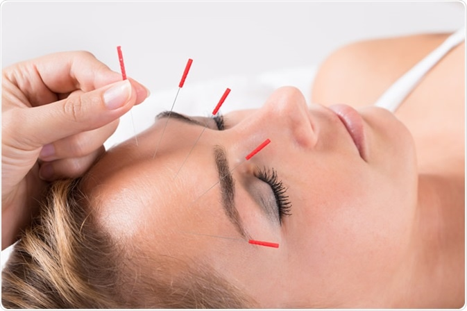 Closeup of hand performing acupuncture therapy on head at salon - Image Credit: Andrey_Popov / Shutterstock