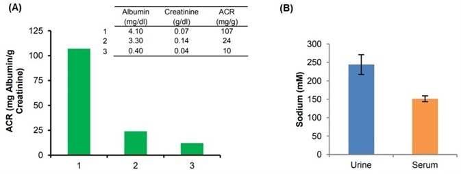 (A) Estimation of ACR (Cat. K551-100) in human urine in diabetic (1) and non-diabetic donors (2 and 3). For Albumin, 50 µL of undiluted samples and for Creatinine, 30 µL of diluted samples (100 times diluted using Creatinine Assay Buffer). (B) Estimation of sodium (Cat. K391-100) in human pooled serum Off-the-Clot (5 µL; 50 times diluted) and human urine (10 µL; 100 times diluted). Assays were performed following kit protocols.