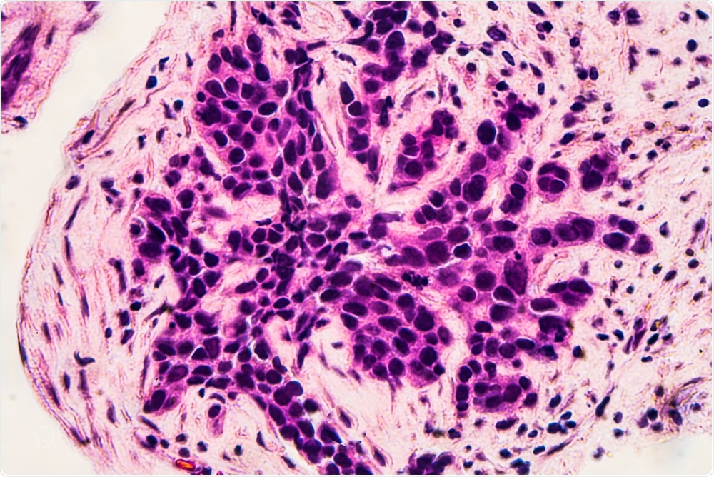 Researchers have developed a targeted therapy that may significantly increase the survival of pre-menopausal women with breast cancer.