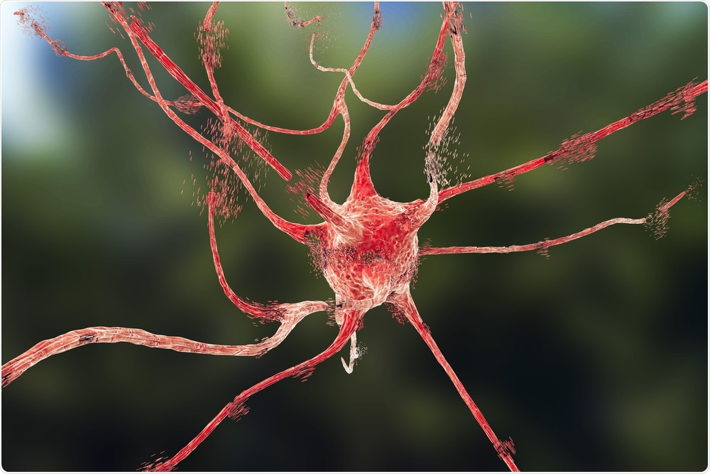 Apoptosis (cell death) of a neuron after ischemic injury to the brain.
