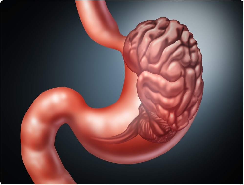 Abstract image of the gut-brain axis