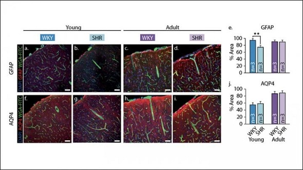 Healthy blood vessels could help stave off cognitive decline