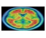 Smarter, more educated people get a cognitive 'head start', but aren't protected from Alzheimer's