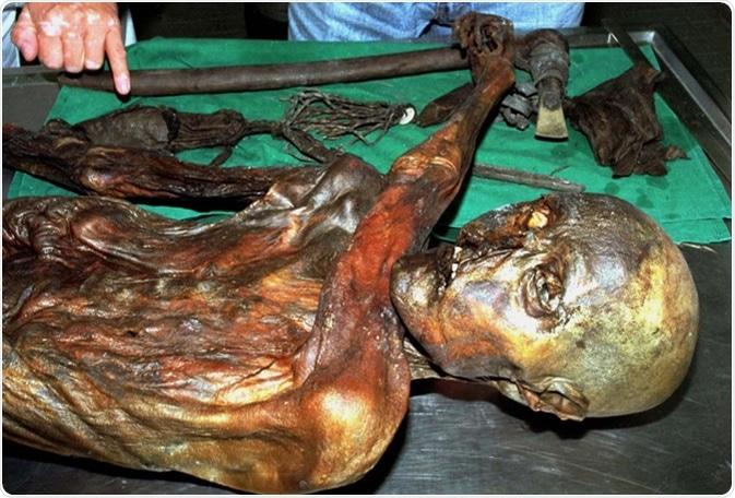 Ötzi tenía un total de 61 tatuajes el consistir en de 19 grupos de líneas negras que colocaban a partir de la 1 a 3 milímetros en espesor y 7 a 40 milímetros de largo.