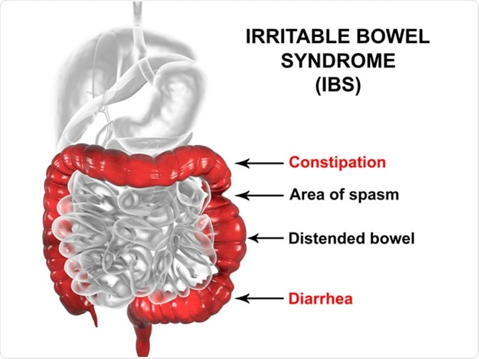 Irritable bowel syndrome IBS, 3D illustration showing spasms and distortion of large intestine. Image Credit: Kateryna Kon / Shutterstock