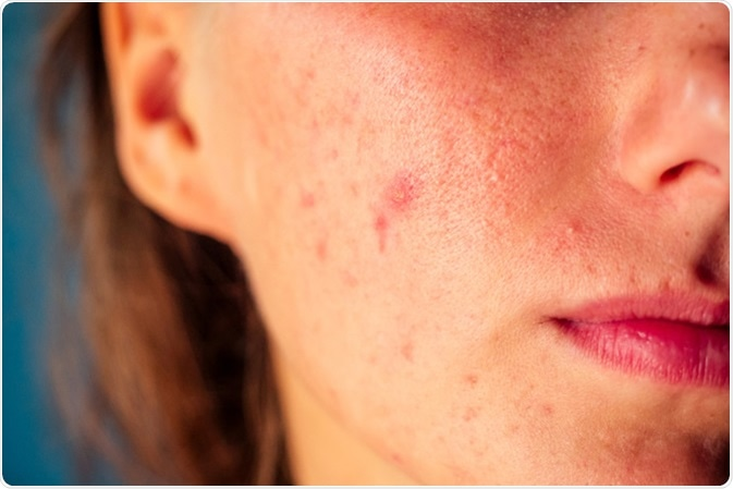 Post-acne, scars and red pimples on the face of a young woman. Image Credit: Yurakrasil / Shutterstock