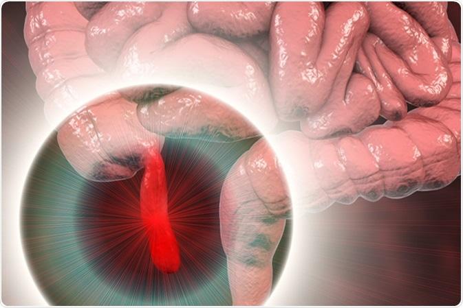Acute appendicitis, 3D illustration showing inflammed appendix on the cecum. Image Credit: Kateryna Kon / Shutterstock
