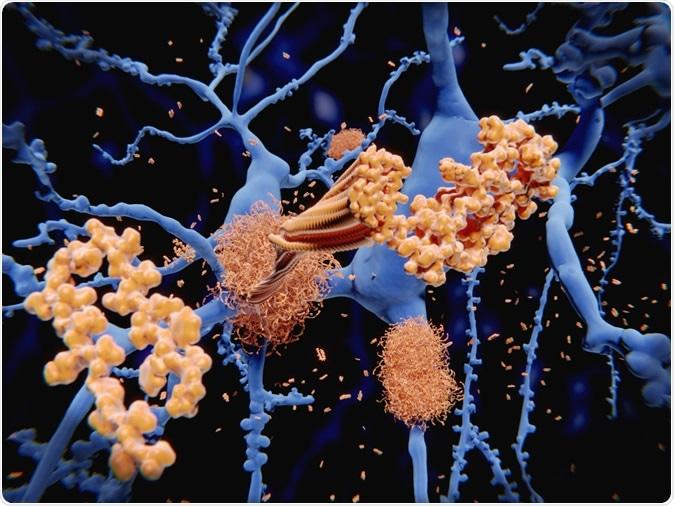 Doença de Alzheimer: o amyloid-beta peptide acumula às fibrilas do amyloid que acumulam chapas densas do amyloid. 3d rendição - crédito de imagem: Juan Gaertner/Shutterstock