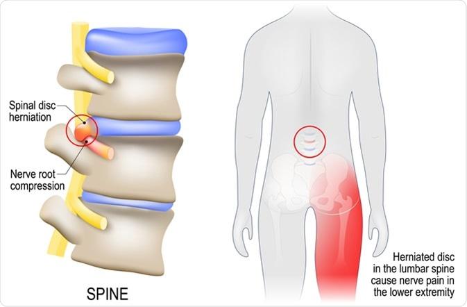 Sciatica diagram with vertebrae, disks and nerves - Image Credit: Designua / Shutterstock