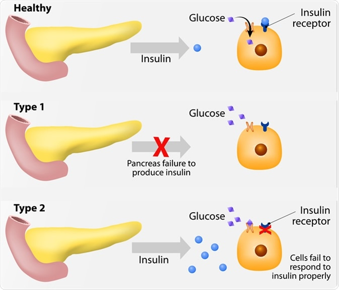 Main types of diabetes mellitus. Either the pancreas not producing enough insulin or the cells of the body not responding properly to the insulin produced. Image Credit: Designua / Shutterstock