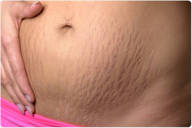 Woman displaying stretch marks on her abdomen after pregnancy caused by tearing of the dermis layer of the skin and showing as red discolorations, close up of her belly - Image Credit: Michaelheim / Shutterstock