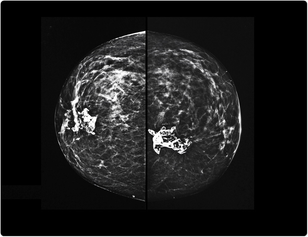 X-ray mammography of breast tissue