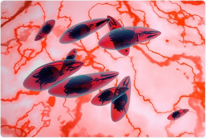 Toxoplasma gondii. Image Credit: fotovapl / Shutterstock