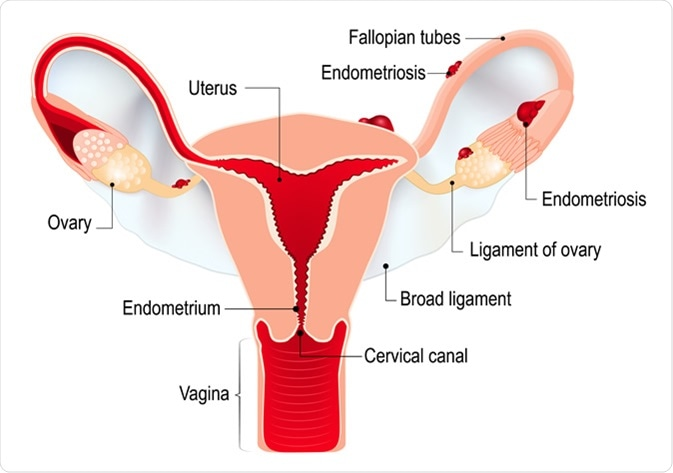 Endometriosis. Schematic drawing of various types of endometriosis disease. Image Credit: Designua / Shutterstock