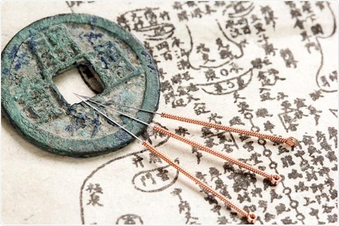 Agujas de la acupuntura y ejemplo antiguo del remedio que muestran puntos de la acupuntura en el cuerpo humano - haber de imagen: Pixeljoy/Shutterstock