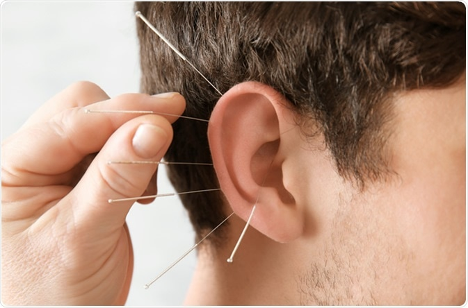 Acupuncture in man