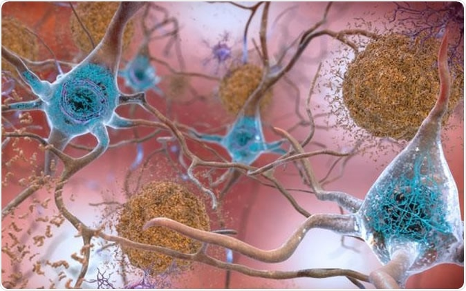 In brains affected by Alzheimer