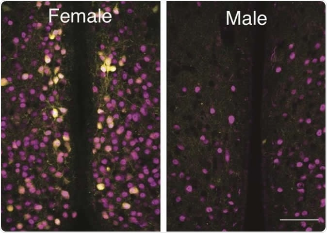 A Louisiana State University biologist and his students have discovered a group of cells that are activated by oxytocin in one area of female mouse brains that are not present in the same area in male mouse brains. Image Credit: Ryoichi Teruyama, LSU