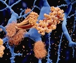 Liver function may be important in Alzheimer's disease risk