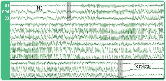 EEG recording from three epidural electrodes during an epileptic seizure in a rat. N3 refers to the phase of the sleep cycle during which the seizure occured.