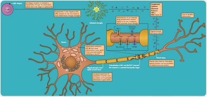Mechanisms of demyelination and axon degeneration in MS.