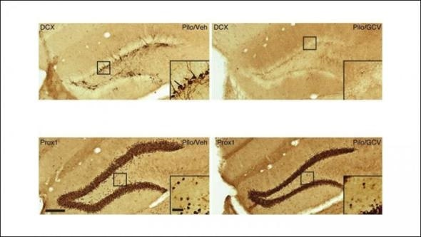 Removing newborn neurons after brain injury reduces seizures in mice