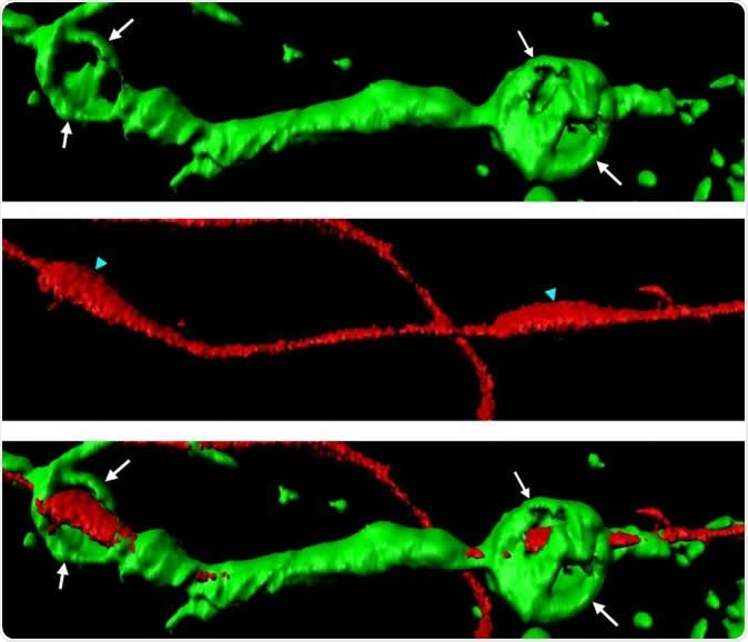 Actin spheres (green) wrapped around a severed axon (red). Image Credit: Adrien Vaquie (Cell Reports)