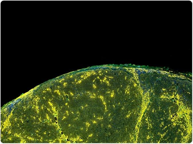 I fluorocromi sono usati per una serie di applicazioni. Qui, gli indicatori delle cellule sono stati evidenziati con un indicatore fluorescente (un fluorocromo).
