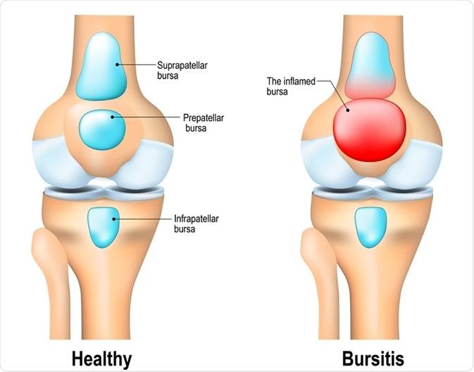 Diagram showing bursitis versus healthy knee joint.