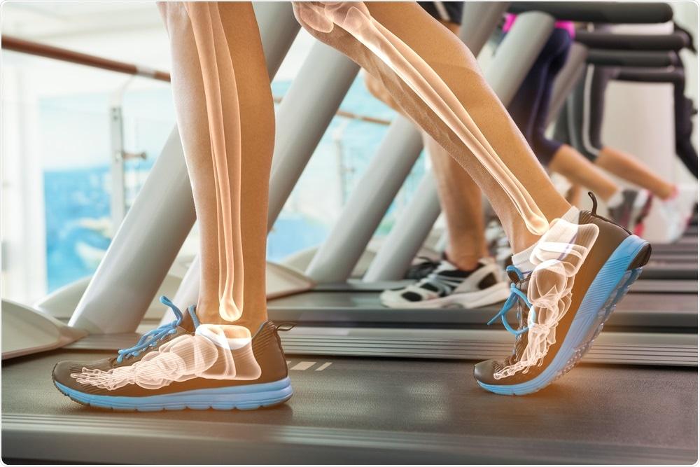 Person running on treadmill showing bone health