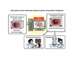 Researchers use AI to develop early gastric cancer endoscopic diagnosis system