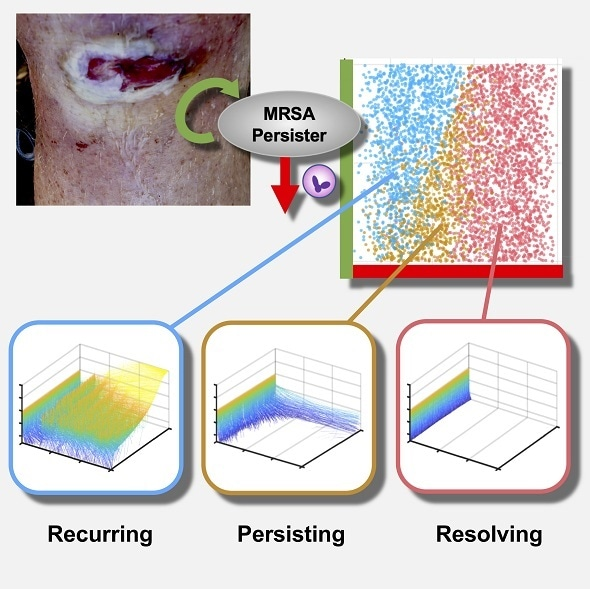Mathematical model helps identify determinants of persistent MRSA bacteremia