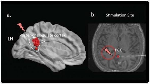 Deep brain stimulation impairs memory recall