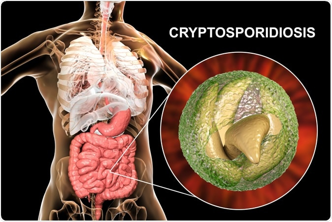 Cryptosporidiosis, a diarrheal disease caused by Cryptosporidium parvum protozoan. 3D illustration showing release of parasite sporozoites from oocyst inside small intestine - Illustration Credit: Kateryna Kon / Shutterstock