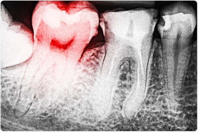 Tooth Decay. Image Credit: Radu Bercan / Shutterstock