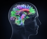 Don't Miss the Blood-Brain Barrier Drug Delivery (B3DD) Summit this August