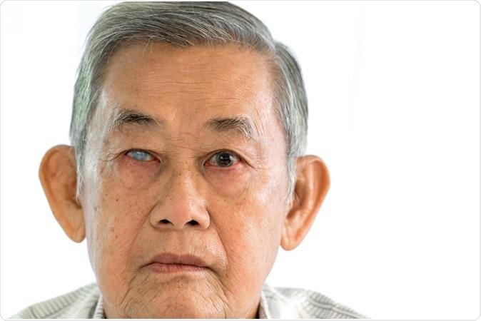 Glaucoma do ângulo agudo no olho direito. Crédito: Ittidech/Shutterstock